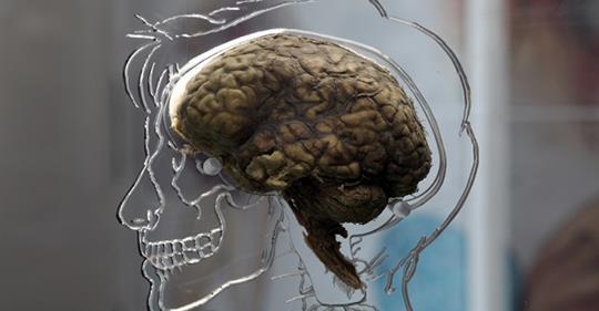 Irisina, l'ormone dello sport può proteggere il cervello dalla demenza